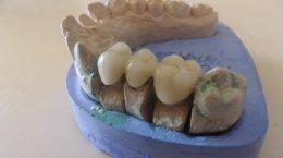 studium dentystyczne